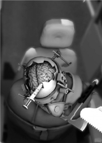Bossa Studio - Surgeon Simulator